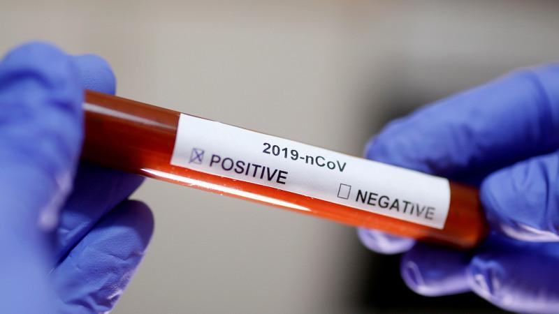 ЖССТ пандемия бошидан бери янги коронавирус рекордини қайд этди