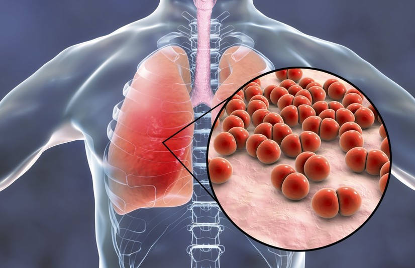 Икки томонлама пневмония ҳам юқумли касалликми?