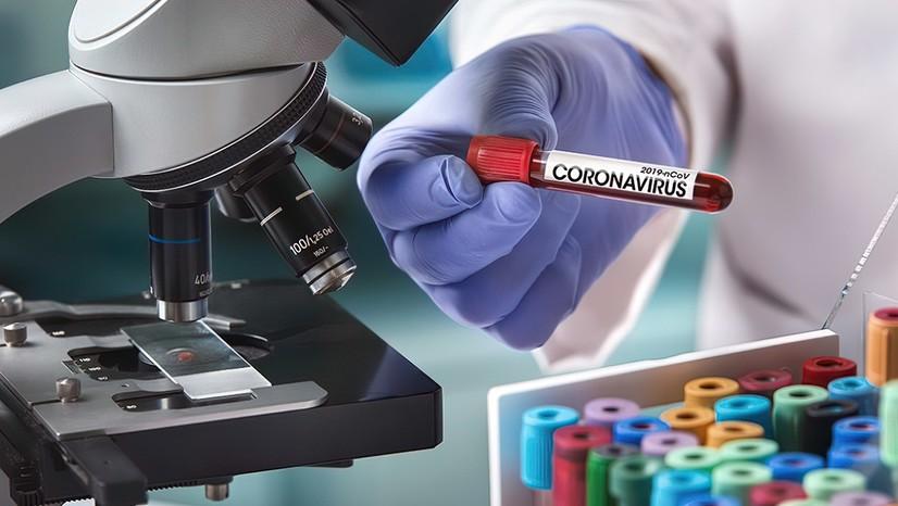 Тошкент шаҳрида аҳоли орасидан 102 кишида коронавирус аниқланди